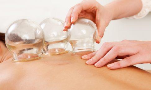カッピング(吸い玉)効果ある・ない場所 肩こりは肩甲骨と胸! 使い方から注意点まで 紫跡は瀉血