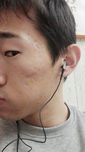 クレーター治療をはじめる前の肌