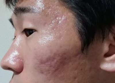 ニキビ跡・クレーター肌治療前