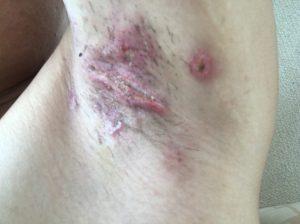 皮弁法2週間後の傷跡 ワキガ手術