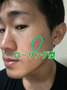 ローリング型のニキビ跡・クレーター肌