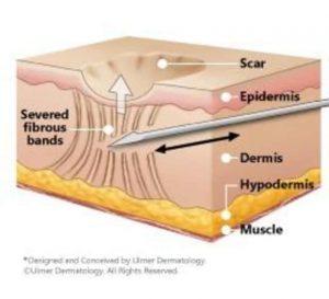 サブシジョンでクレーター肌を治す