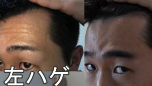セルフ育毛ビフォーアフター生え際(右)
