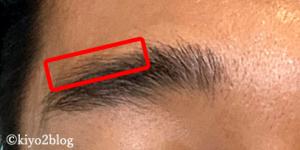 フォリックスで眉毛が濃くなる