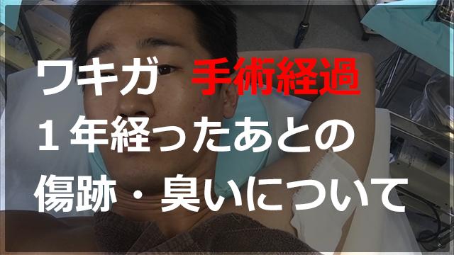 ワキガ(腋臭)を保険適応で手術した。臭いは消えた?傷跡は?手術から1年後の経過報告まで!