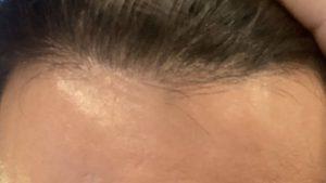 ミノキシジルで発毛した髪の毛