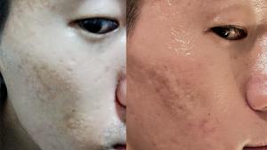 自力でクレーター肌(ニキビ跡)治療結果
