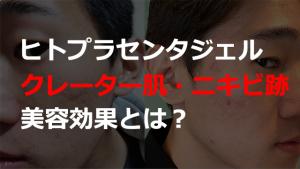 ヒトプラセンタジェル(プラセントレックス) 美容効果とは?クレーター肌・ニキビ跡治療での使い方