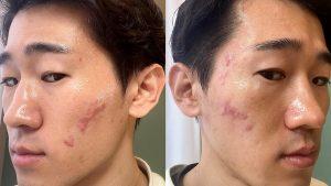 クレーター肌を治すサブシジョン