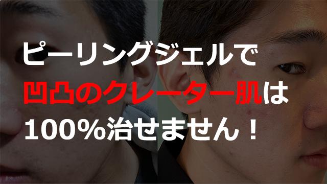 ピーリングジェルでクレーター肌は100%治療できません!ニキビ跡とクレーター肌の違いについて解説します。