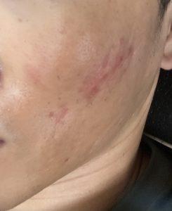顔のムダ毛をレーザー脱毛する