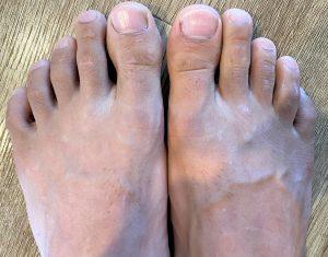 トリアで足の指毛脱毛(アフター画像)