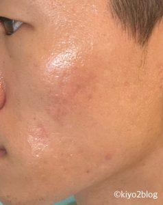 ダーマペンナノ針後の肌